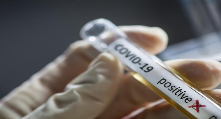 ЄС погодився закупити вакцину у Sanofi і GlaxoSmithKline